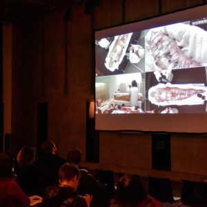 Image of screening of Martin O'Brien in live performance. His body is wrapped in cellophane