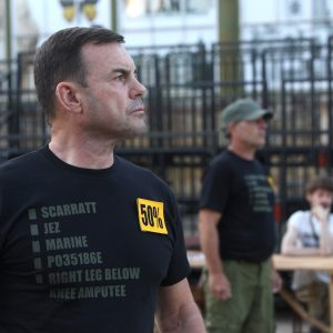 Photo of a performer posing with a black t-shirt with his injuries written in grey on it